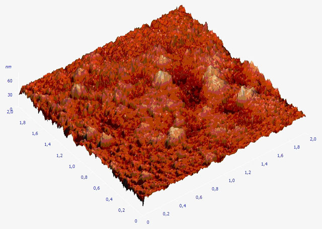Соевый белок под электронным микроскопом (фотограф Юрий Шушкевич)